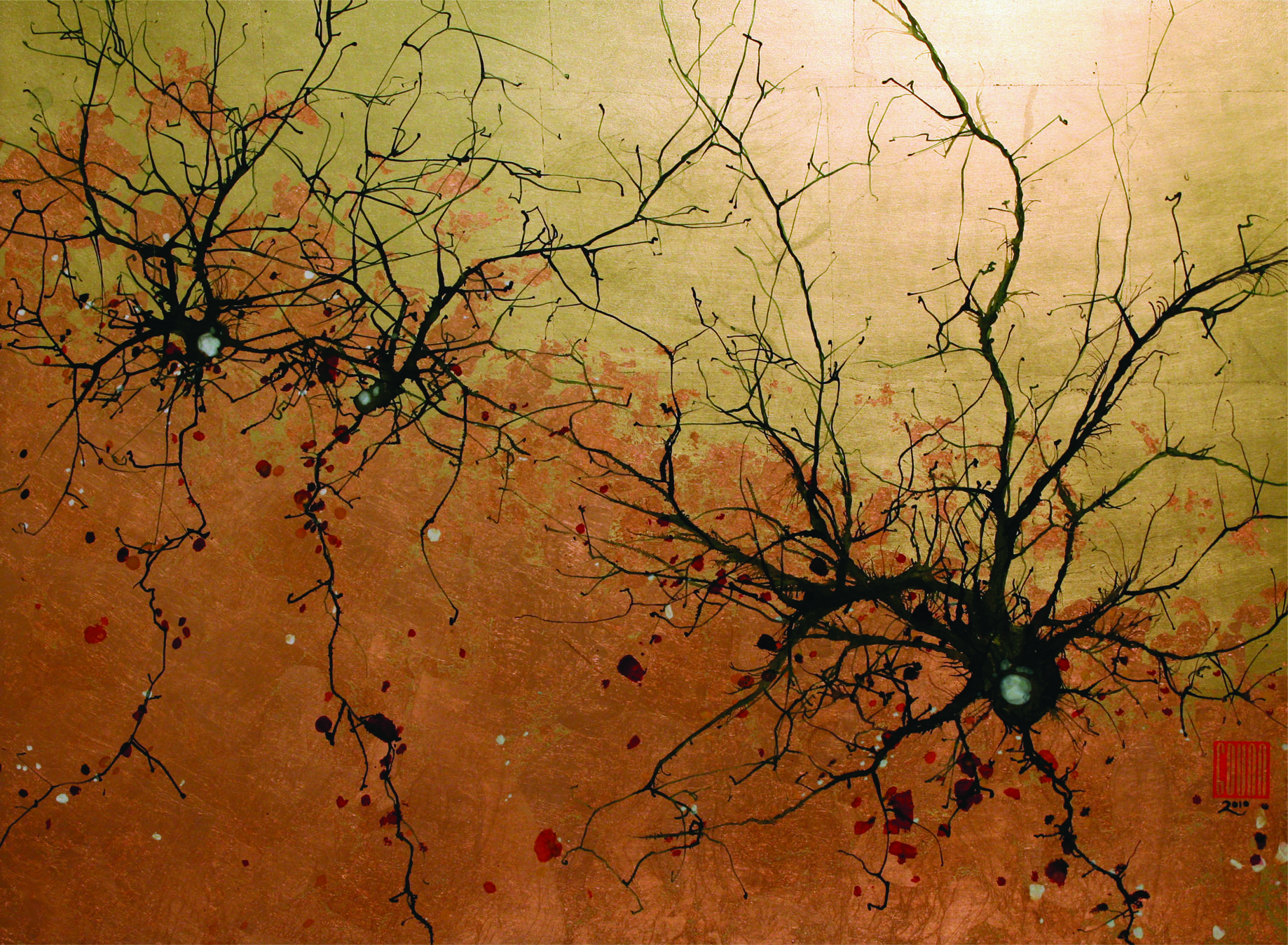 Purkinje Neurons